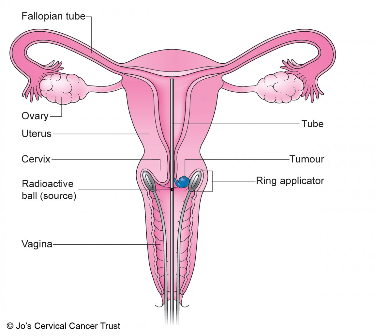 Radiotherapy Brachytherapy Jos Cervical Cancer Trust