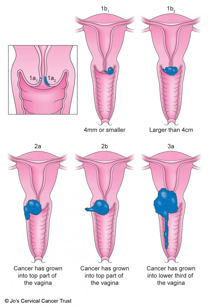 An illustration of cervical cancer cells or tumours from stage 1 to stage 3.