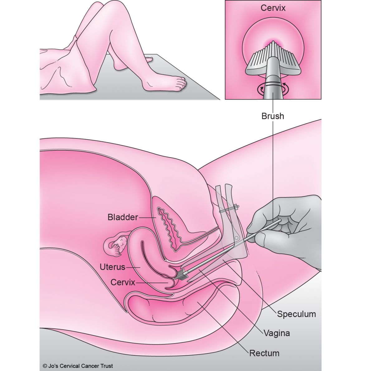 Someone lying back on an examination bed. A nurse has gently put a speculum inside the person's vagina to see the cervix, so they can take a sample of cells.