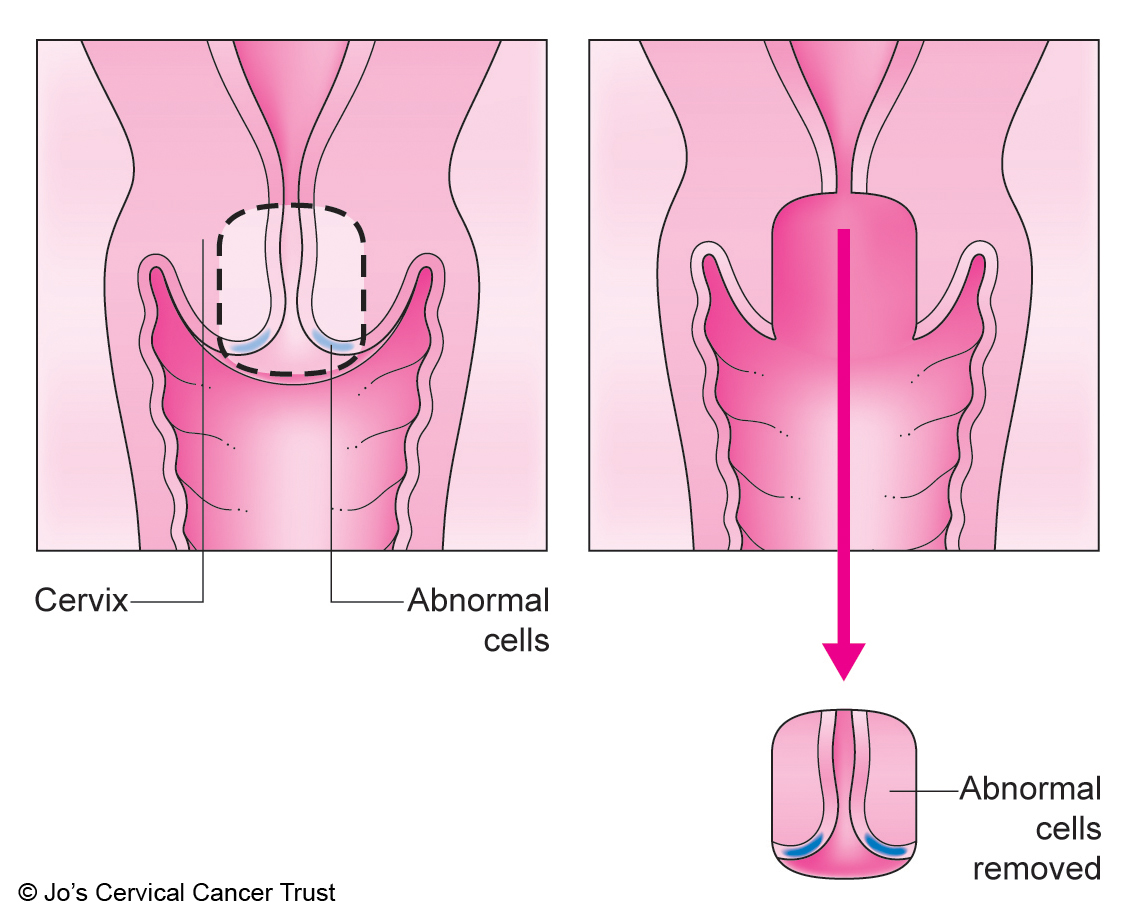 An illustration showing the cervix. A cone-shaped piece of the cervix has been removed.