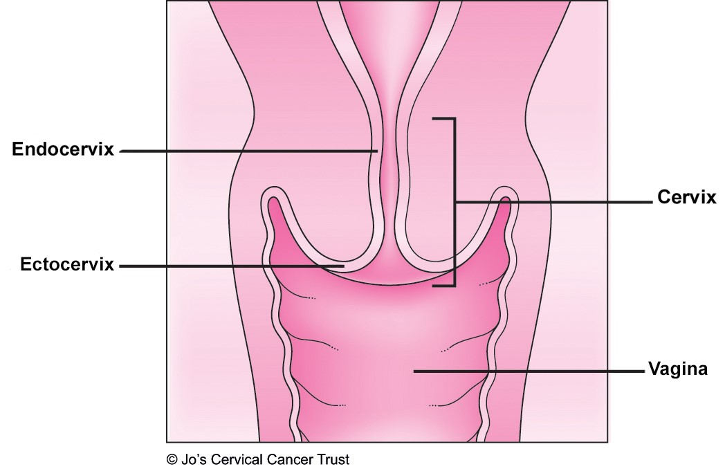 An illustration of the cervix highlighting the outer surface and inside.