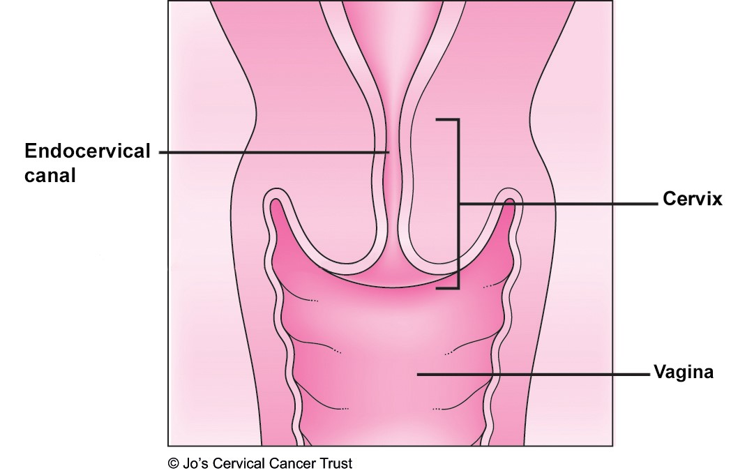 An illustration showing the structure of the cervix and signposting to the inside or endocervical canal.