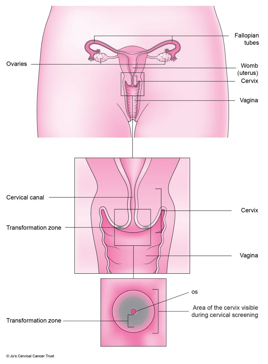 The Cervix Jos Cervical Cancer Trust