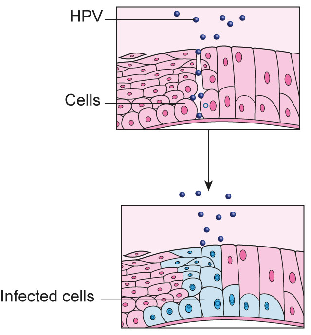 The first picture shows HPV starting to infect the cervical cells. The second picture shows the cervical cells once HPV has successfully infected them.