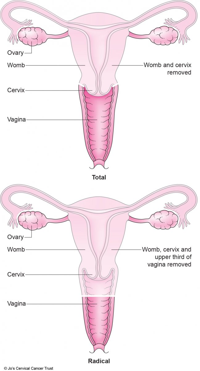 An illustraction of two types of hysterectomy showing which parts of the female reproductive system are removed via surgery.