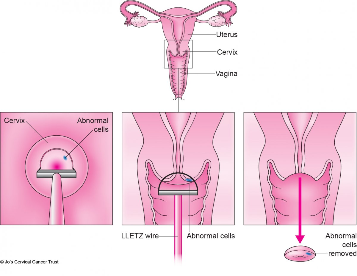 An illustration of the female reproductive system. The cervix is emphasised with a box around it. It shows part of the cervix being removed with a thin wire loop.