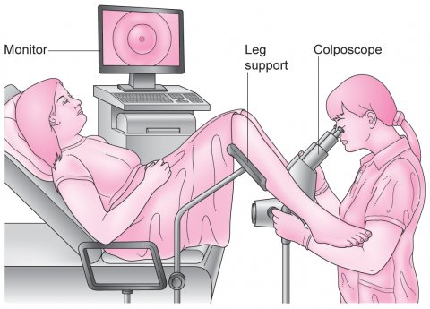 کولپوسکوپی   colposcopic examination of cervix