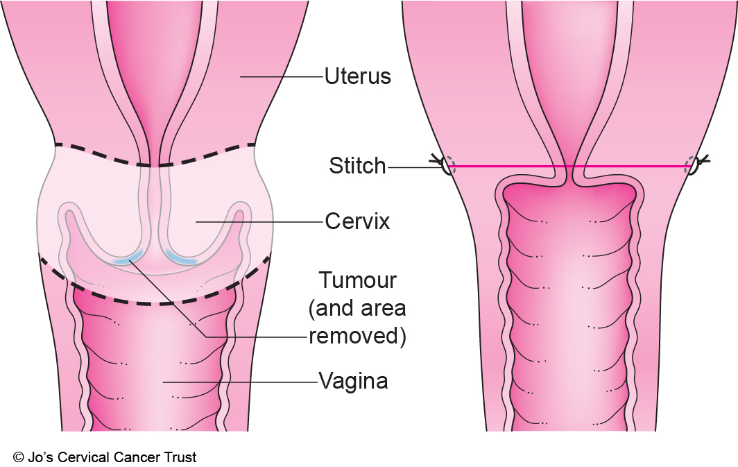 Trachelectomy For Cervical Cancer Jos Cervical Cancer Trust