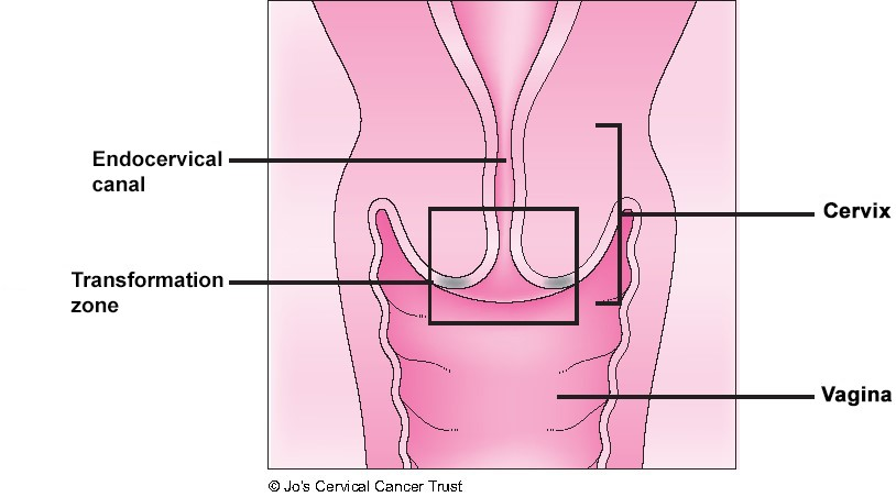 An illustration of the cervix showing where cells are taken during cervical screening. It is called the transformation zone.