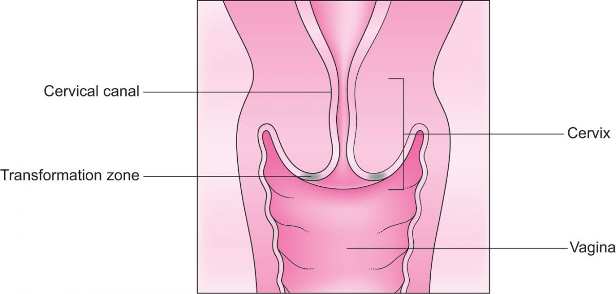 The picture shows the cervical canal, the cervix and the vagina. It has a label pointing to the transformation zone at the bottom of the cervix, which is where a cervical ectropion usually happens.